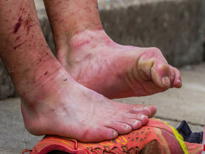 Five tips on how to prevent blisters in adventure racing